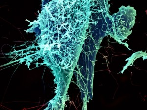 String-like ebola virus particles shed from an infected cell in this electron micrograph. Credit: NIAID