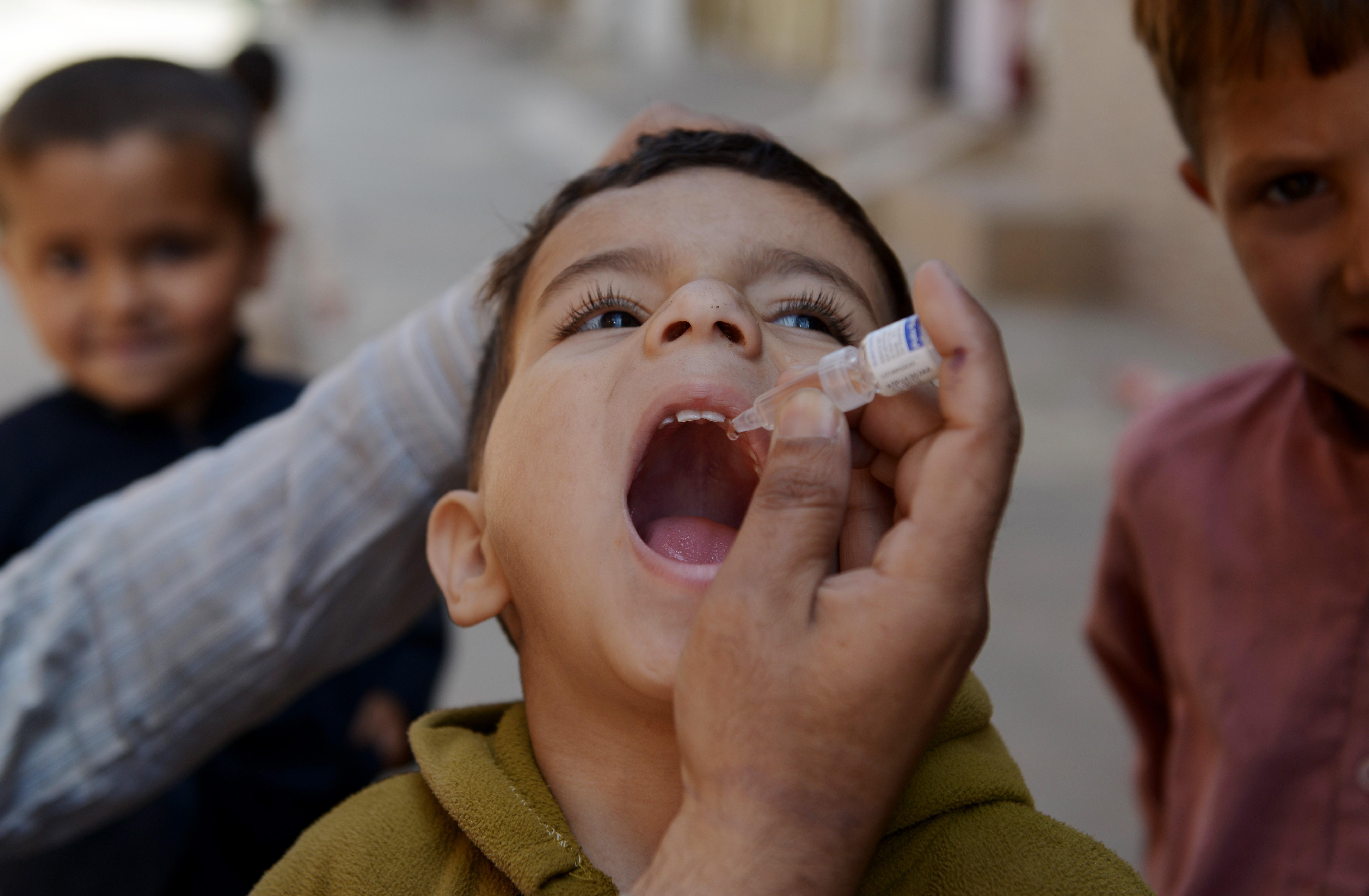 polio (poliomyelitis) on emaze, Skeleton