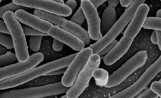 E.coli bacteria. Photo by Rocky Mountain Laboratories, NIAID, NIH