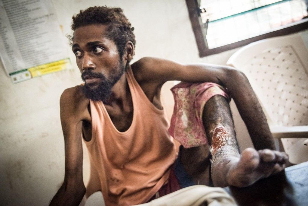 Roughly 40 percent of injection drug users in Malindi have developed wounds from poor injection practices. One of them is Mbarak Salim. Photo by Mia Collis/PBS NewsHour