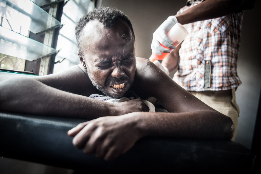 Buska Ismail fights the pain as a clinical officer applies antiseptic to a severe wound on his back. Photo by Mia Collis/PBS NewsHour