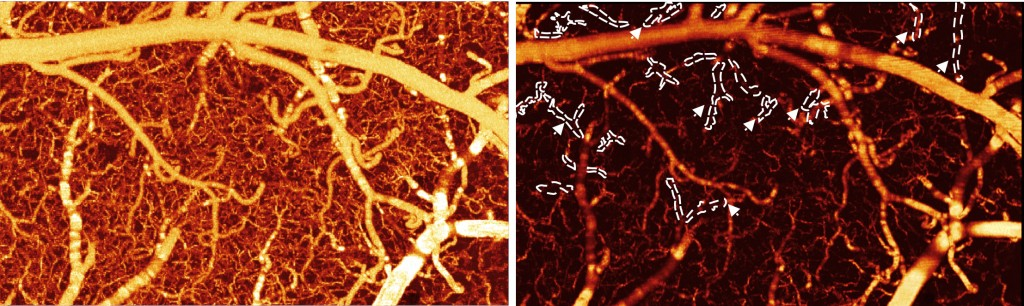 The image on the left shows the mouse brain blood vessels before cocaine. The image on the right shows the blood vessels after, revealing that many of the vessels are now darker, which signifies lower blood flow. Photo from Biomedical Optics Express.
