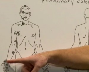 Shawn Parcells, who assisted Dr. Michael Baden in the private autopsy, points to the area that one of the six reported gunshot wounds entered Michael Brown's body. Screenshot by NewsHour