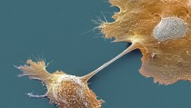Pancreatic cancer cells seen through a scanning electron micrograph. Researchers at Johns Hopkins have found that tissues such as these have a higher probability for cancer instances based on the number of times its cells divide. Photo by Getty Images