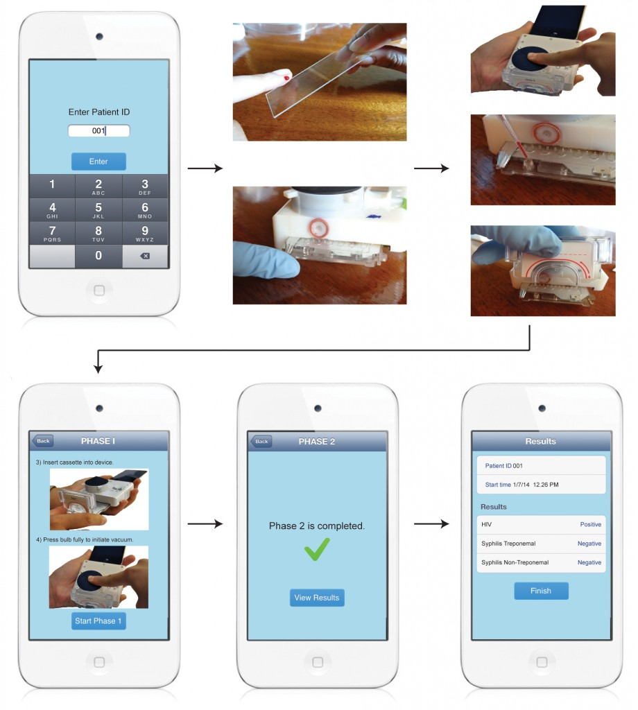 This step-by-step illustration shows how a smartphone attachment can be used to run blood tests for HIV and syphilis. Image by Tassaneewan Laksanasopin