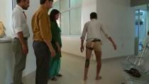 prosthetic1