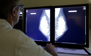 A radiologist examines breast X-rays after a regular cancer prevention medical check-up at a radiology center in Nice, November 5, 2012.      REUTERS/Eric Gaillard (FRANCE - Tags: HEALTH SCIENCE TECHNOLOGY) - RTR3A0O1