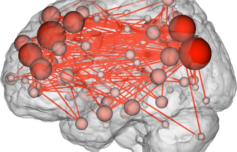 This image shows the functional connections in the brain that tend to be most discriminating of individuals. Many of them are between the frontal and parietal lobes, which are involved in complex cognitive tasks. Photo by Emily Finn