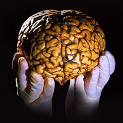 brain model in hands