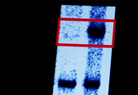 Two strands of DNA, one relatively undamaged from an eight-year-old, one more damaged from a 60-year-old.