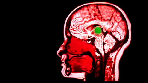 Nova Official Website The Electric Brain