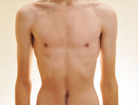 Torso of an anorexic man