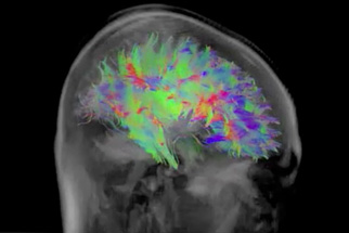 Image: Colorful digital image of the human brain, sort of looks like the brain is painted