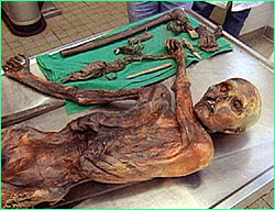 Otzi, the 5300 year old Iceman from the Alps