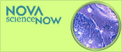 NOVA scienceNOW: Stem Cells Breakthrough