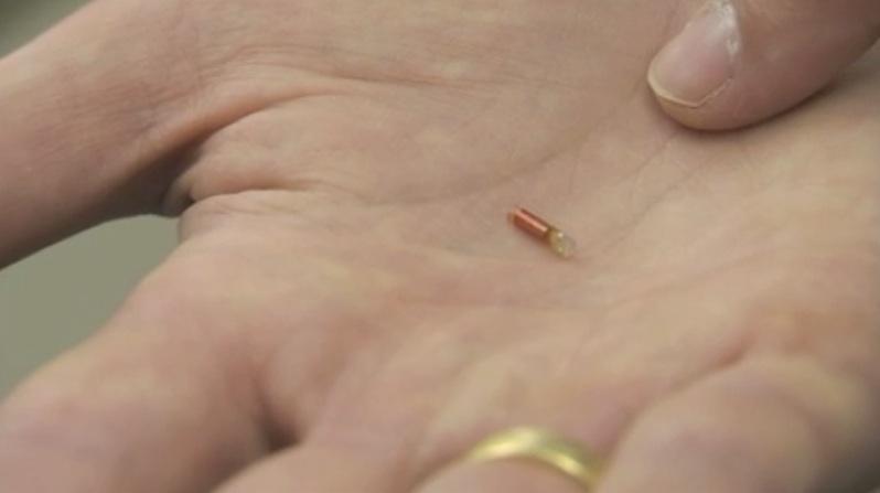 Inplant in hand2.jpg