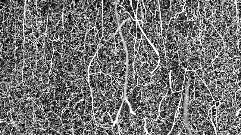 Blutgefäße im Mausgehirn