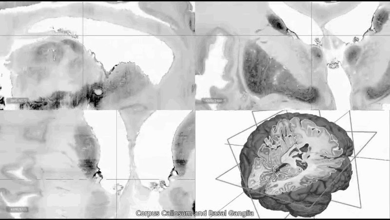 Significant Science of 2013: Brain Mapping Gets a Big Boost-bigbrain.gif