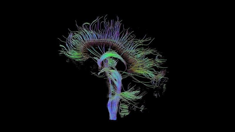 brain-fibers_2048x1152