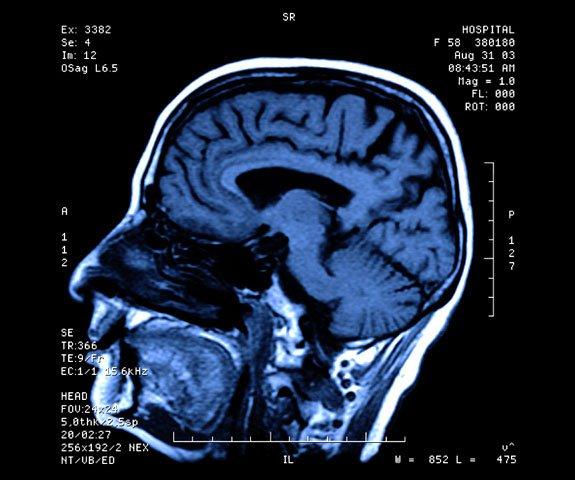 MRI of head