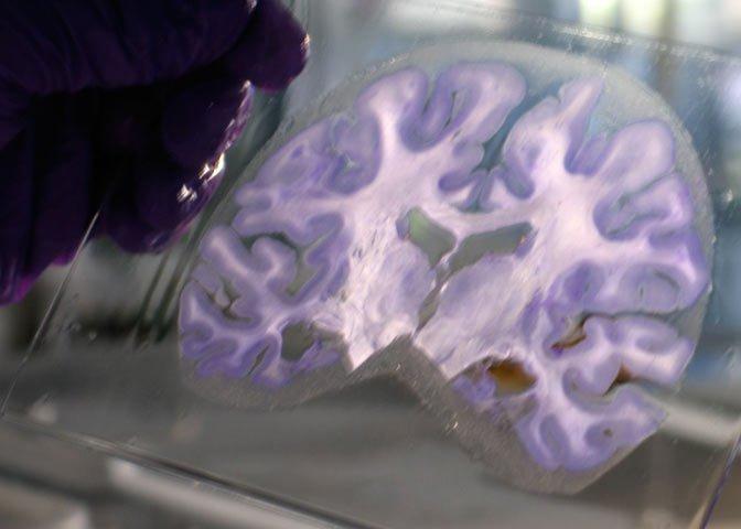preparing H.M.'s Brain