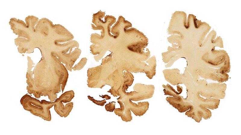 cte-brain-slice