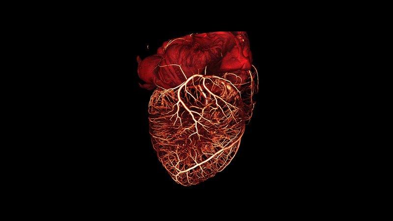 heart-3d-ct-scan