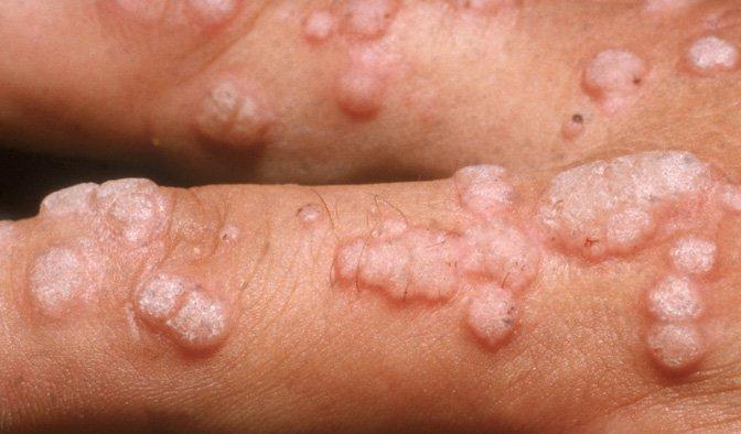 Preventing Hpv Caused Cancers Nova Pbs Nova Pbs