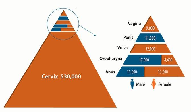 Preventing HPV-Caused Cancers | NOVA |PBS | NOVA | PBS