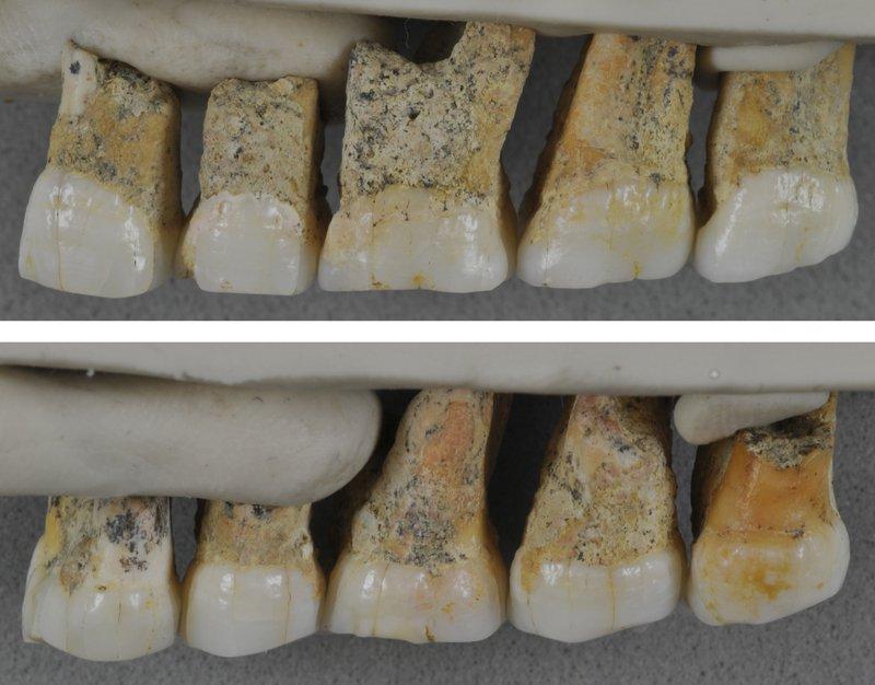 teeth comp.jpg