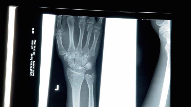 wrist-x-ray
