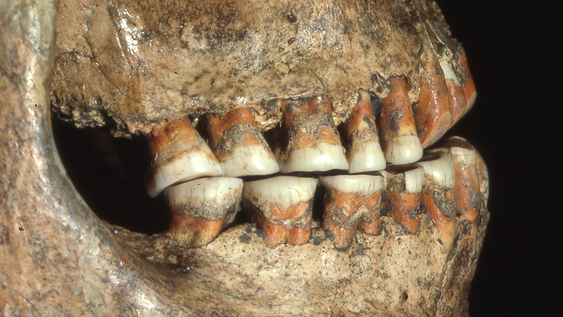 Shanidar 1 dentition lateral right.jpg