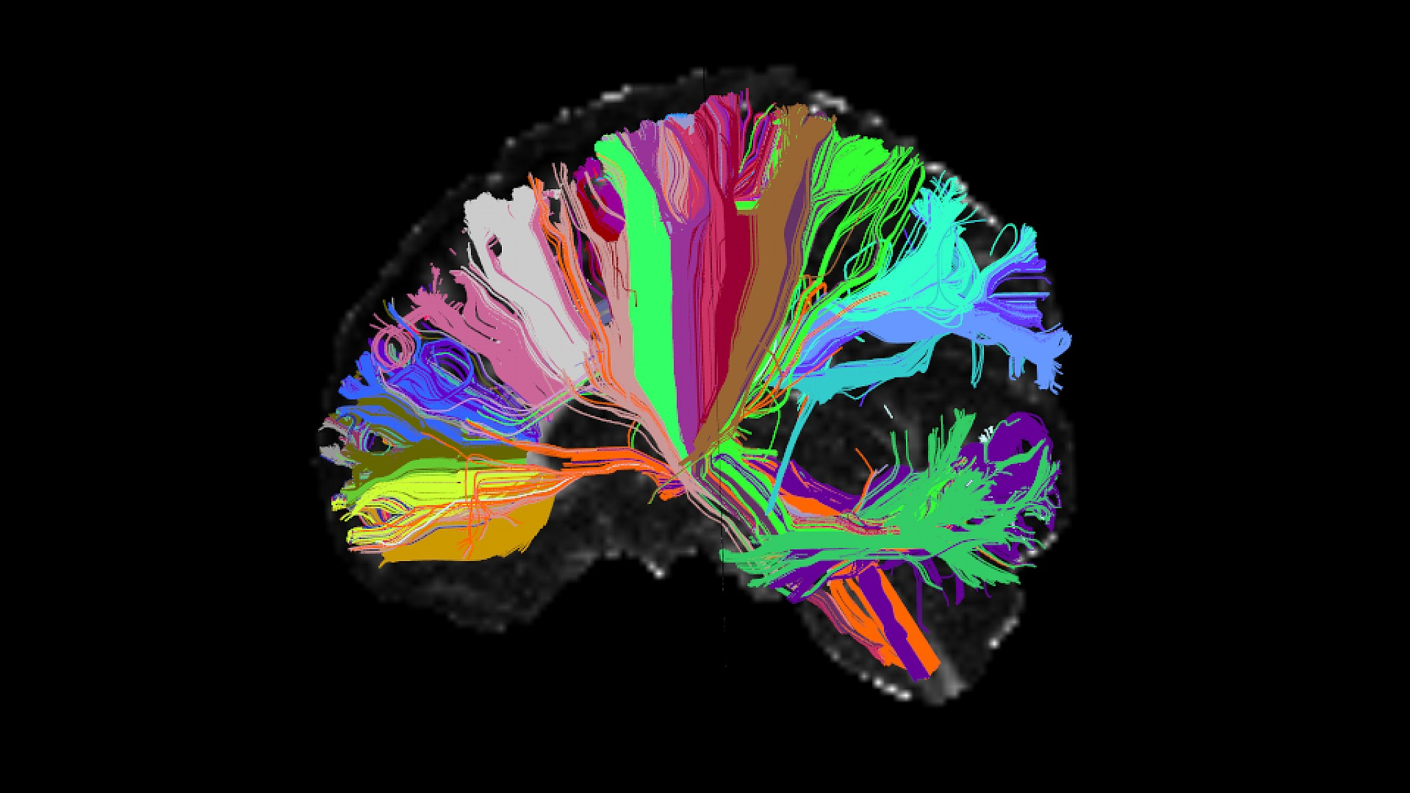 High Angular Resolution Diffusion Image brain