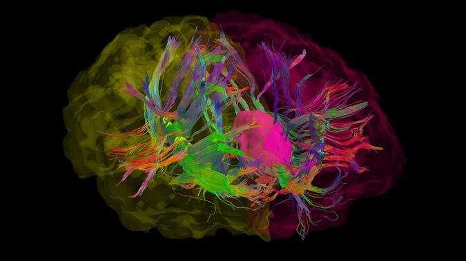 Can Neuroscience Determine Guilt or Innocence?