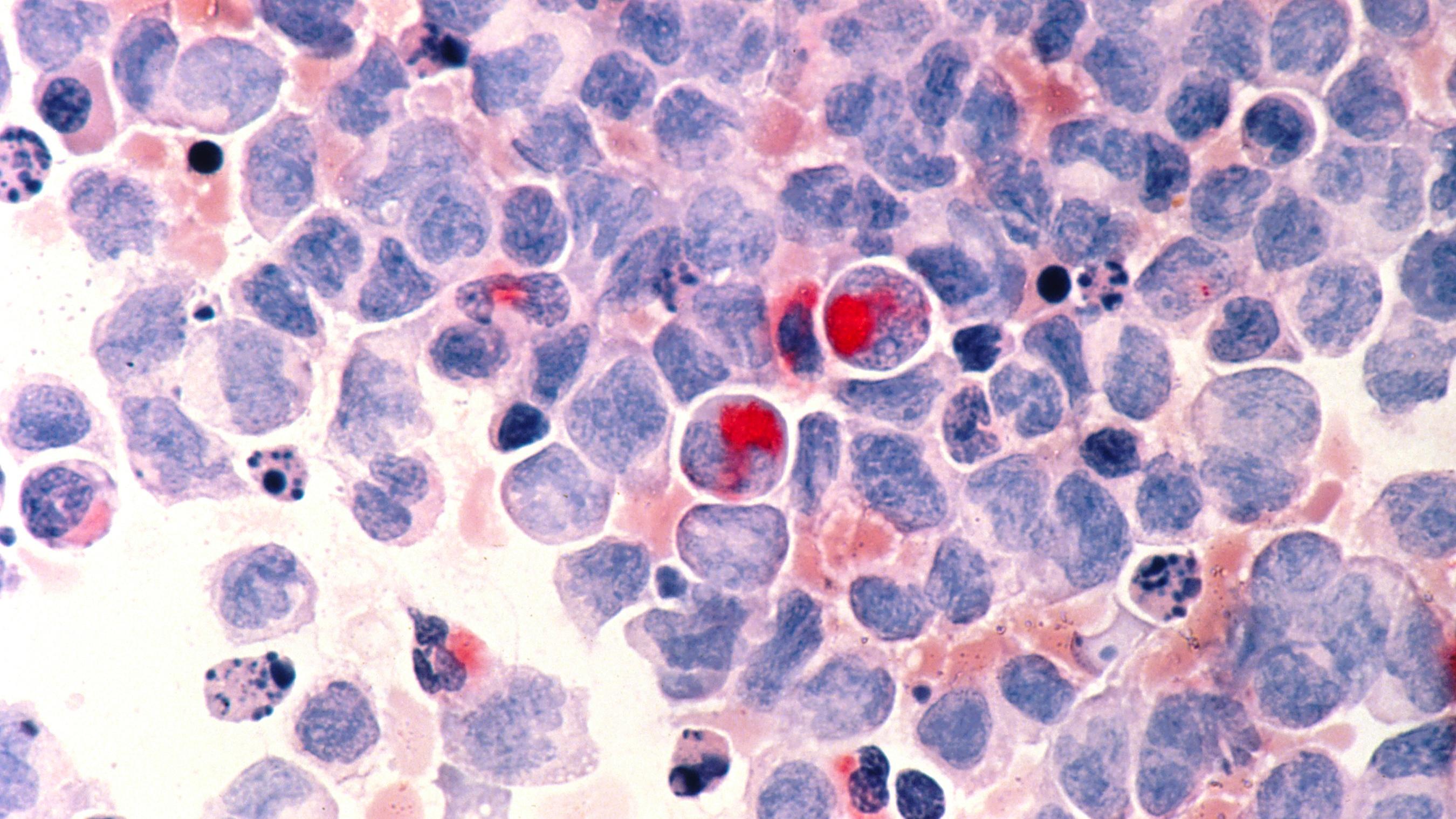 Leukemia-AML
