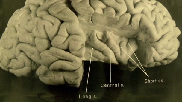 New Photos of Einstein's Brain Hero
