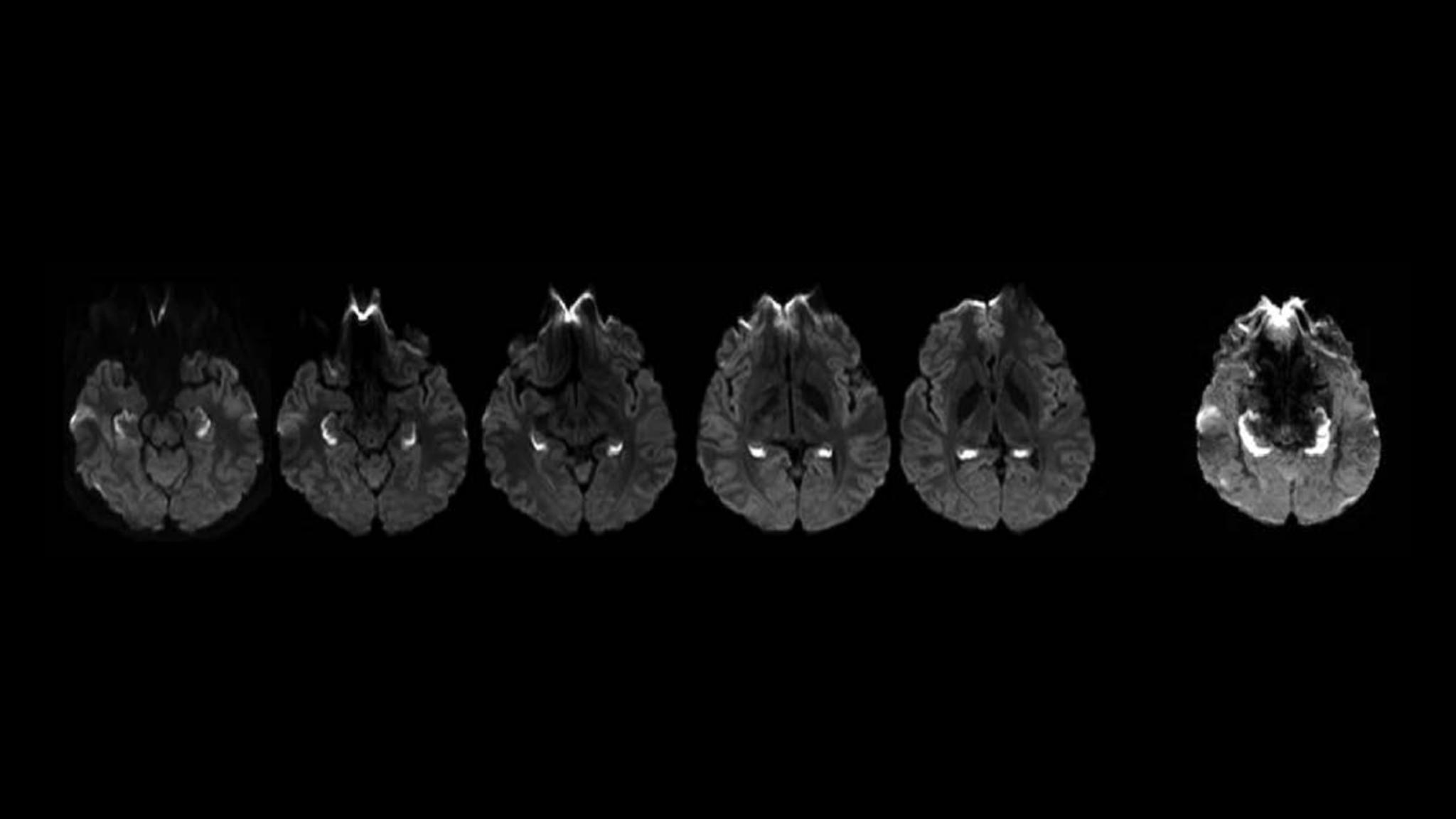 opioid-hippocampus_2048x1152