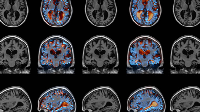 The Virus That Could Cure Alzheimer's, Parkinson's, and More