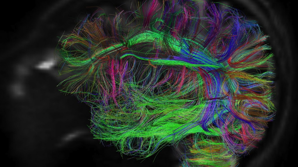 Mgh Hcp Wedeen Lg Th Scientists Hope To Use Bigbrain Along With Other Data To Help Map