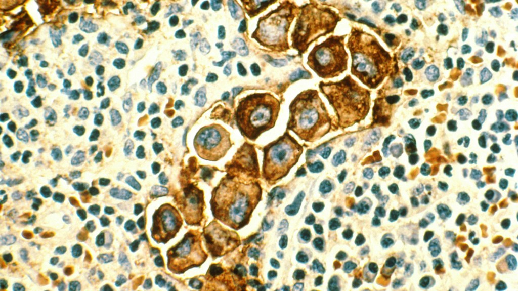 breast-cancer-cells-in-lymph-nodes