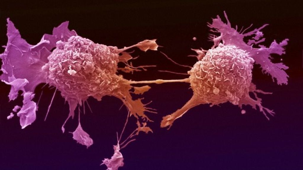 lung-cancer-cells-dividing