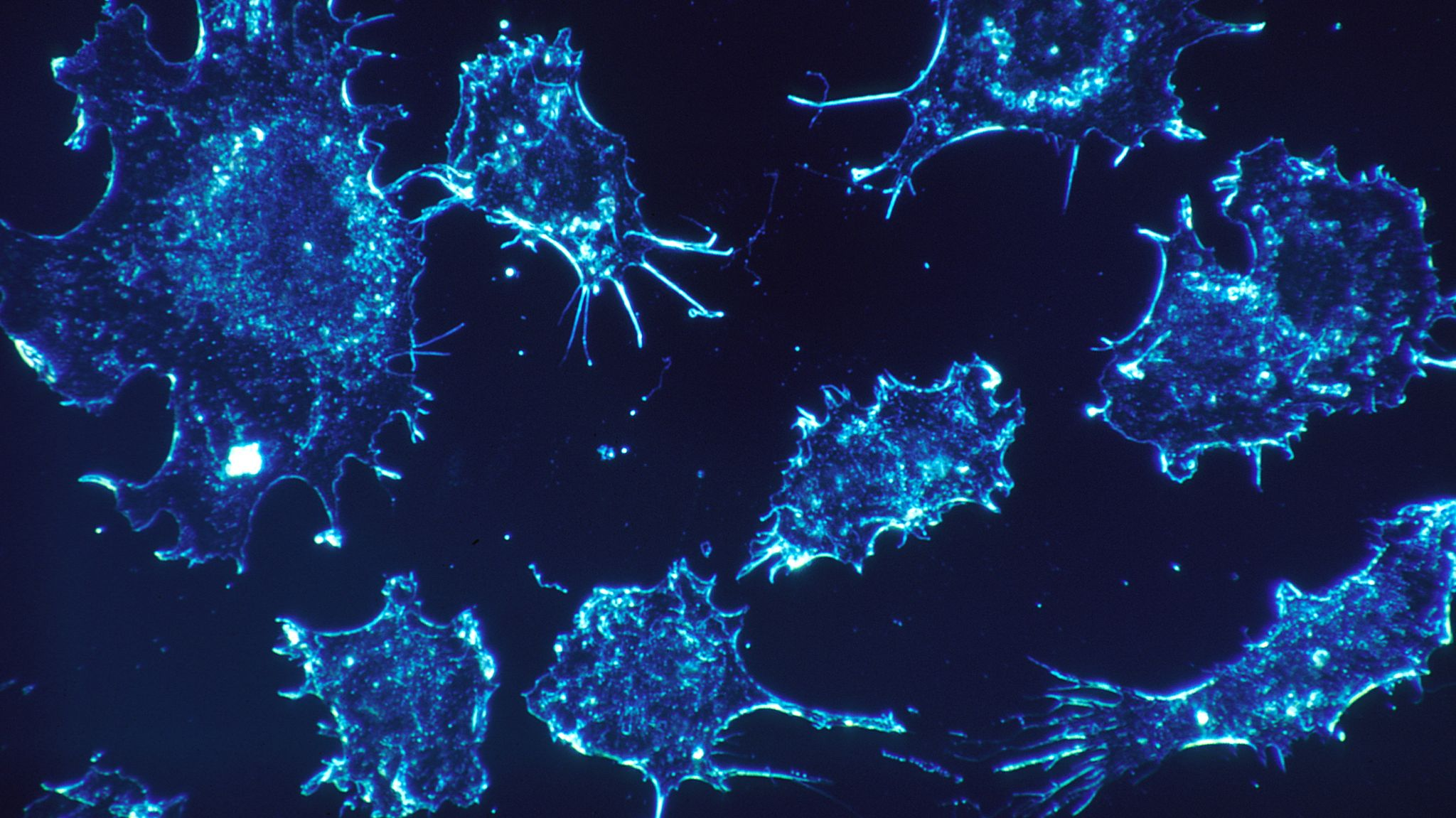 Modified Flesh-Eating Bacteria Could Be the Next Cancer Treatment — NOVA Next | PBS