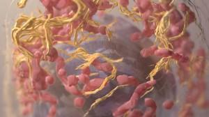 melanoma-cell