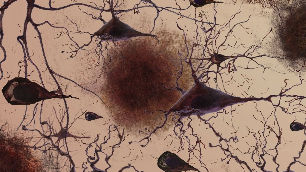 plaque-neuron-connection-loss-cropped