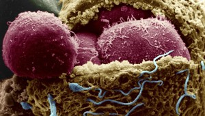 human-embryo-day-four_1024x576