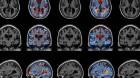 alzheimers atrophy mri scan