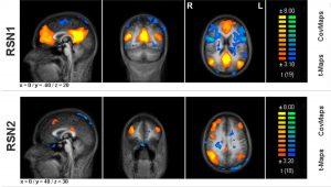 resting brain scans