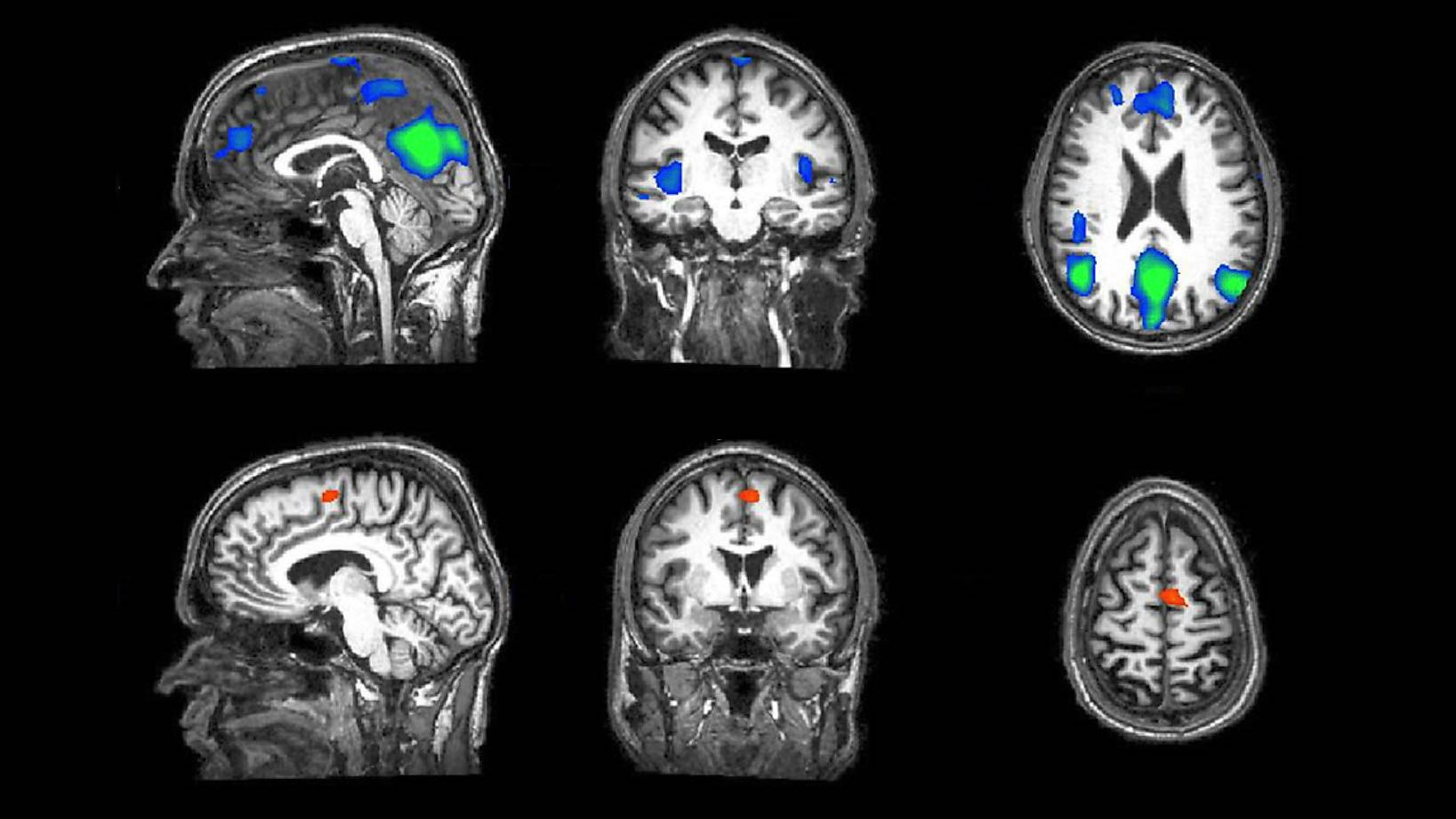 brain fmri scan - photo #12