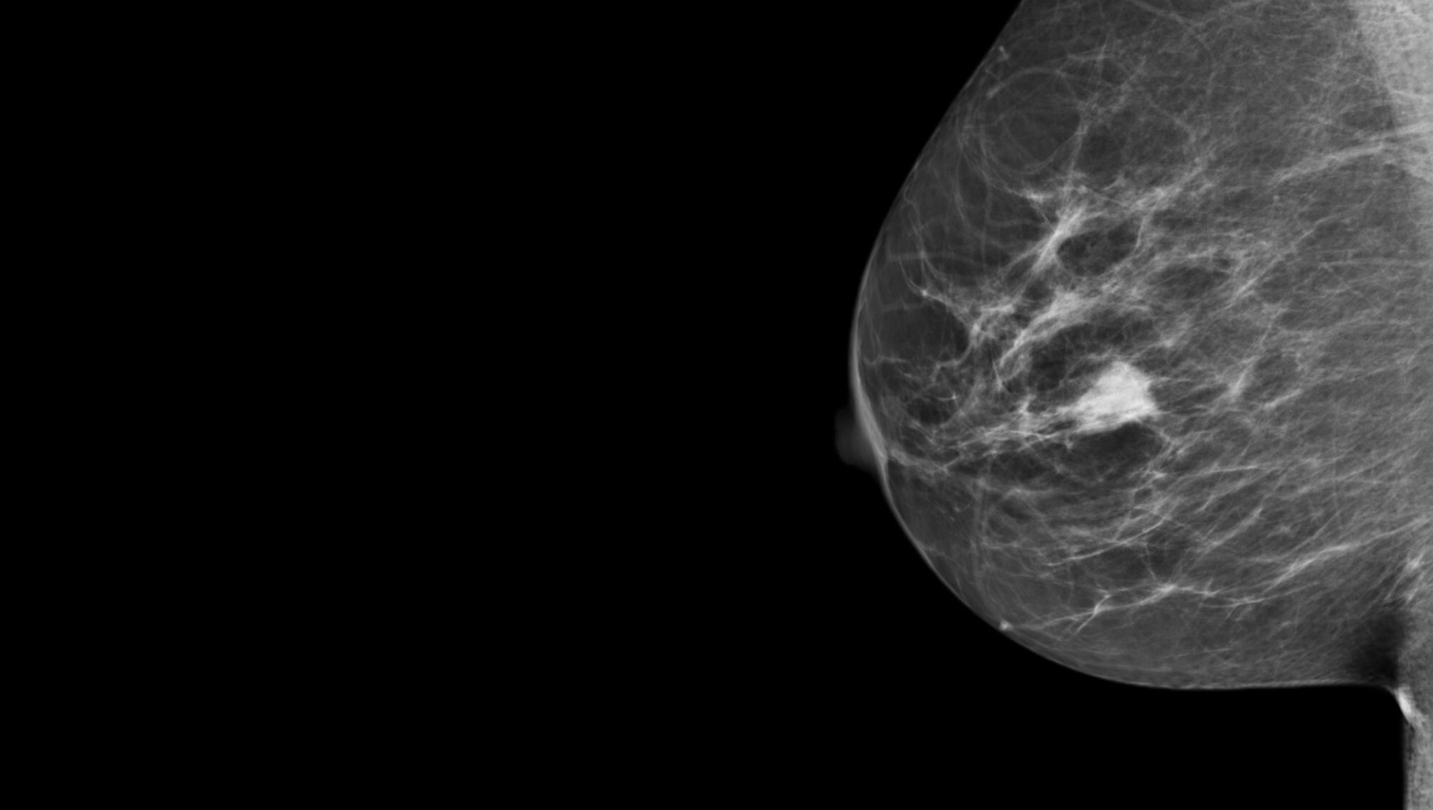 Mammography breast cancer images
