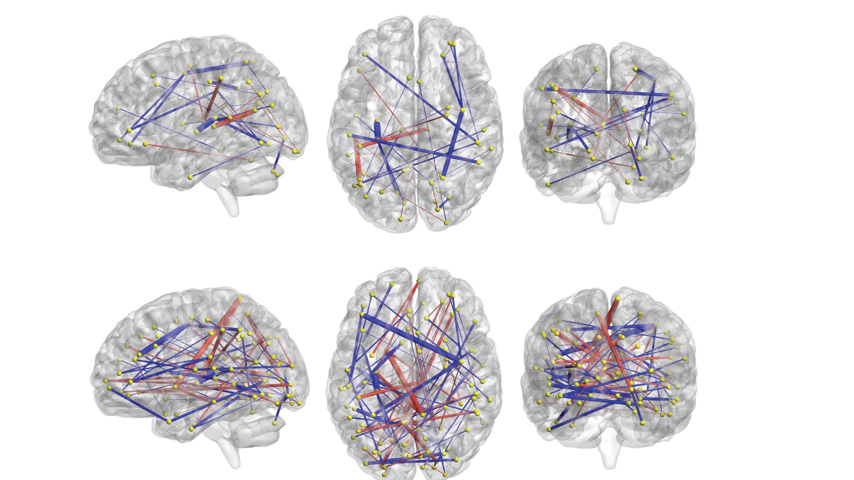 Early Brain Scans Could Predict Likelihood of Autism Diagnosis